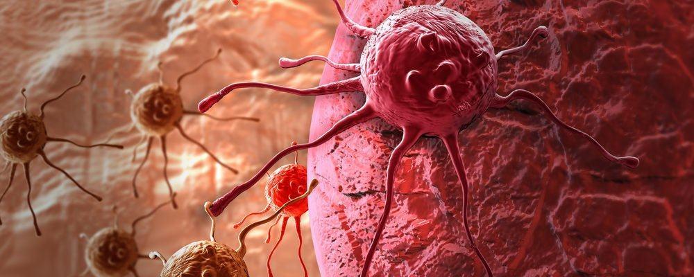 Penyebab Sel Kanker Tumbuh Dalam Tubuh Menurut Penjelasan Rosetta Genomics