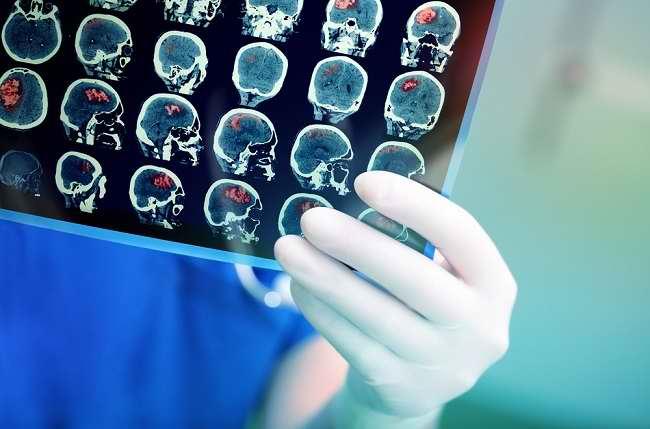 Penyebab Pertumbuhan Sel Kanker Menurut Rosetta Genomics