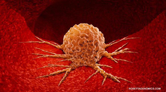 Penjelasan Apa Itu Tumor Jinak, Tipe Serta Proses Penyembuhan