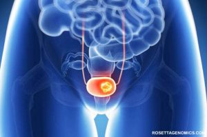 Penyebab dan Ciri-ciri Kanker Kandung Kemih